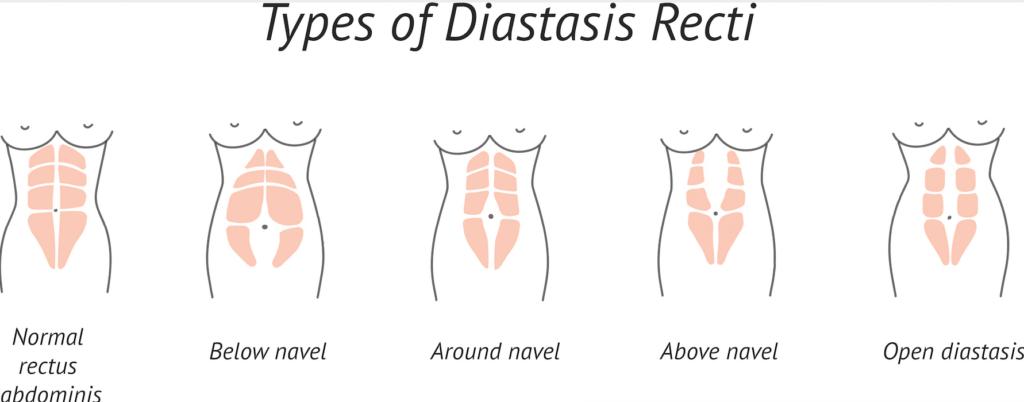 DRA (Diastasis Recti)